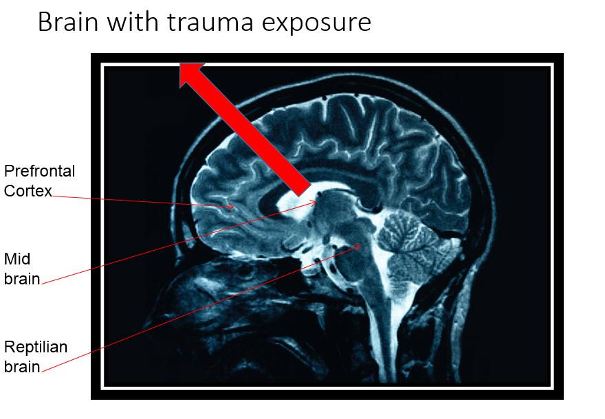 BrainWTrauma